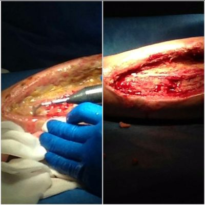 alleg 18 - Pulizia vasta lesione arto inferiore